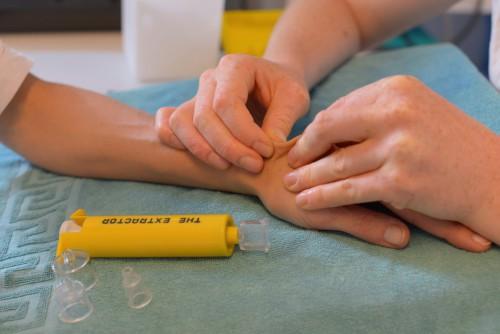 ergothérapie-de-la-main-moyens-de-traitement-photo-illustration-14