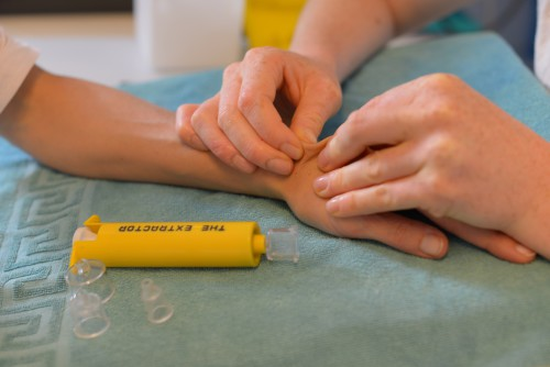 ergothérapie-de-la-main-moyens-de-traitement-photo-illustration-15