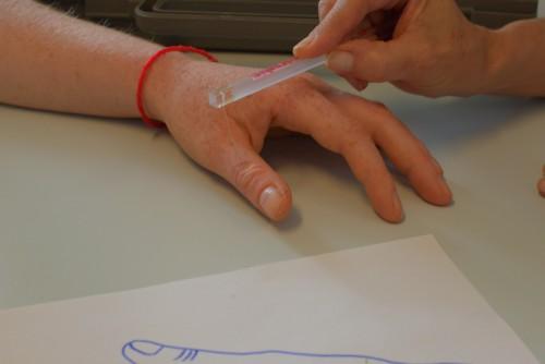ergothérapie-de-la-main-moyens-de-traitement-photo-illustration-43